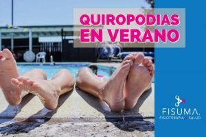 Quiropodia en verano
