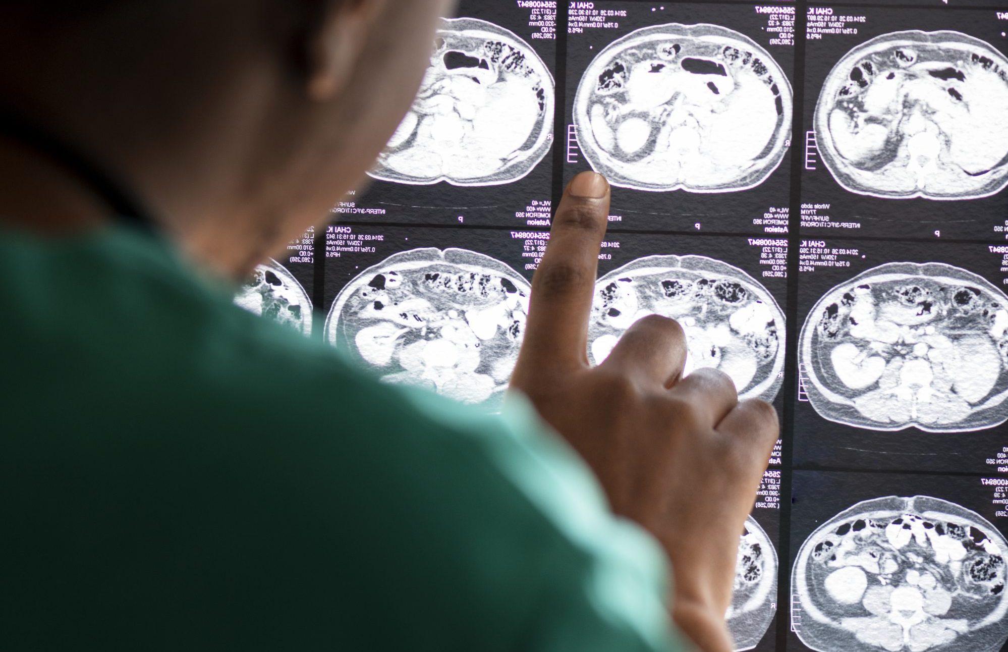 Rehabilitación y recuperación del daño cerebral adquirido