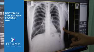 Fisioterapia para la salud pulmonar