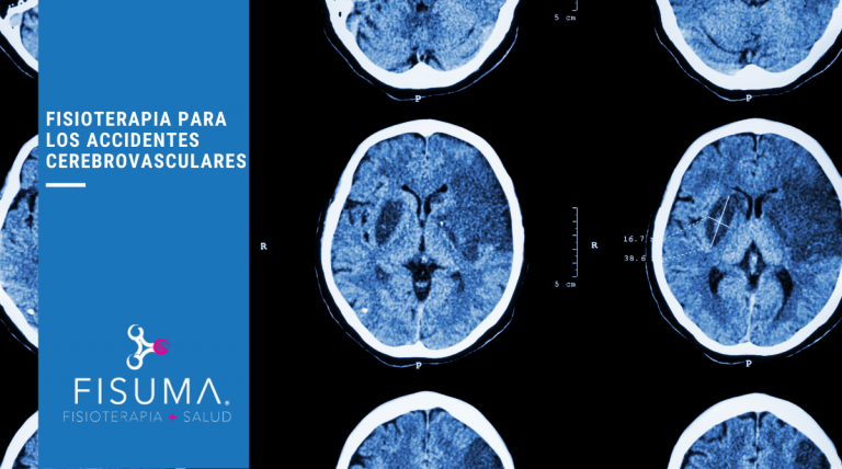 Fisioterapia para accidentes cerebrovasculares