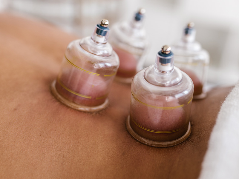 Fisioterapia invasiva Malaga