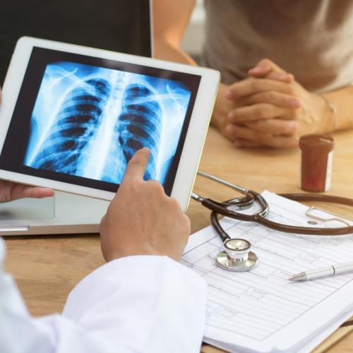 Diagnóstico fisioterapia respiratoria adultos Málaga. Clínica FISUMA