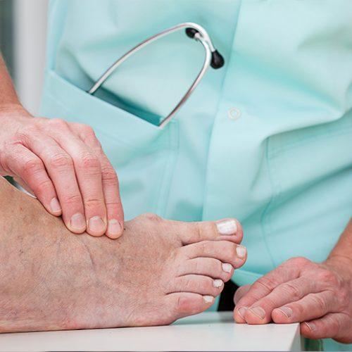 Tratamiento del pie diabético en Málaga Fisuma